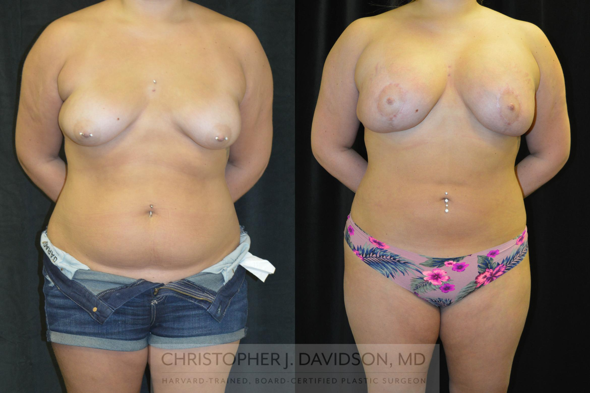 Liposuction Case 78 Before & After View #1 | Wellesley, MA | Christopher J. Davidson, MD