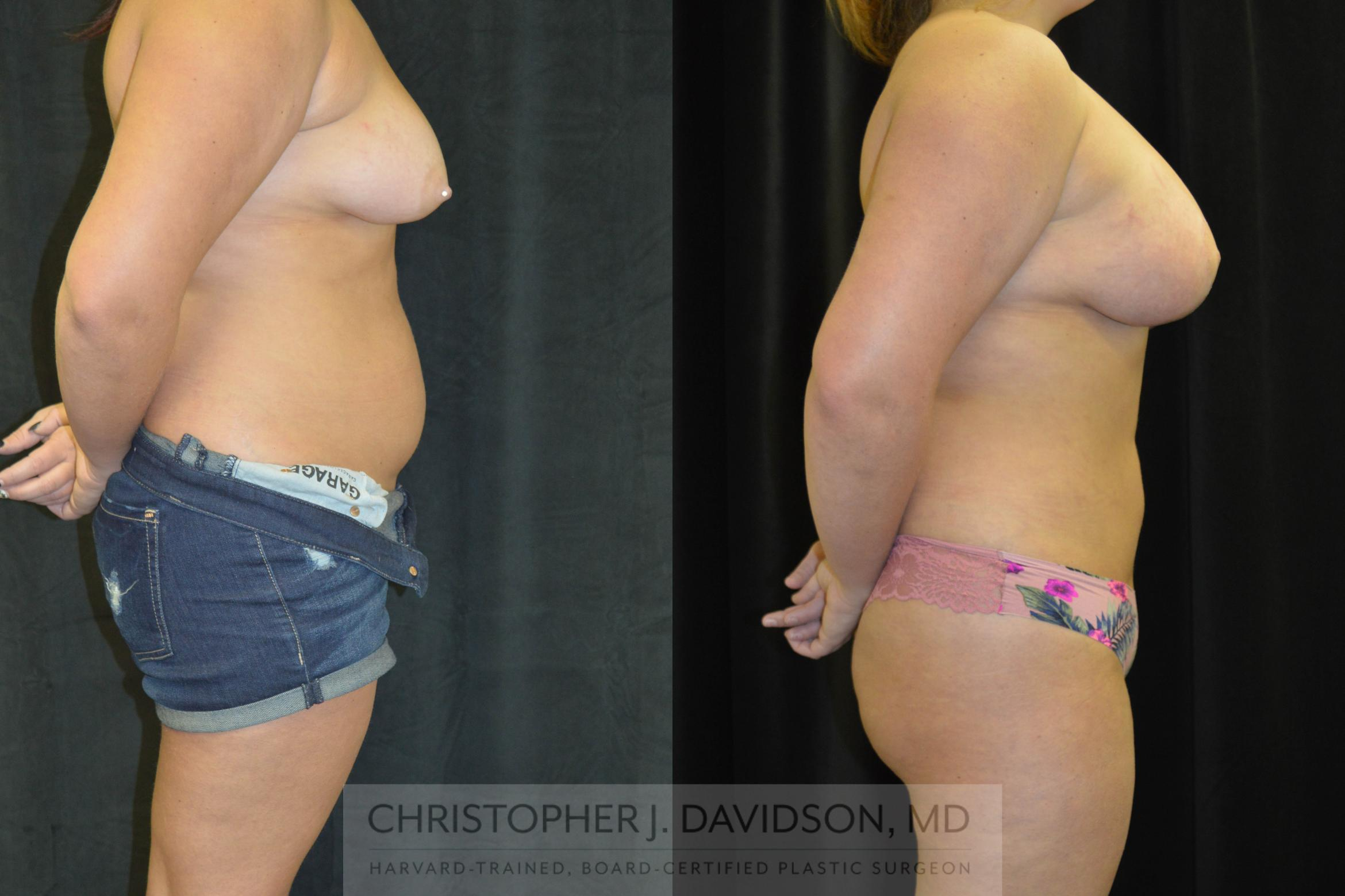 Liposuction Case 78 Before & After View #2 | Wellesley, MA | Christopher J. Davidson, MD