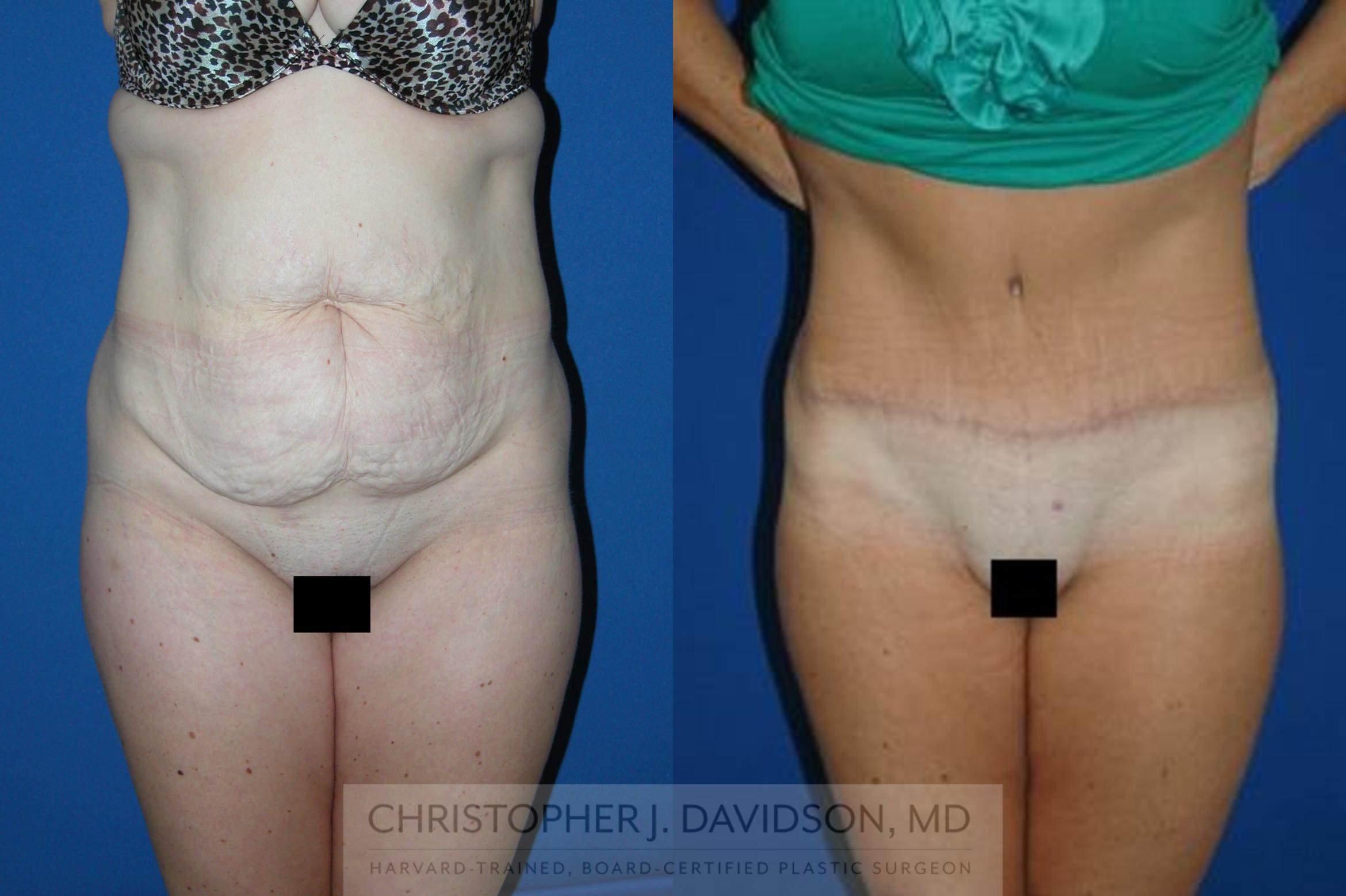 Lower Body Lift Case 106 Before & After View #1 | Boston, MA | Christopher J. Davidson, MD