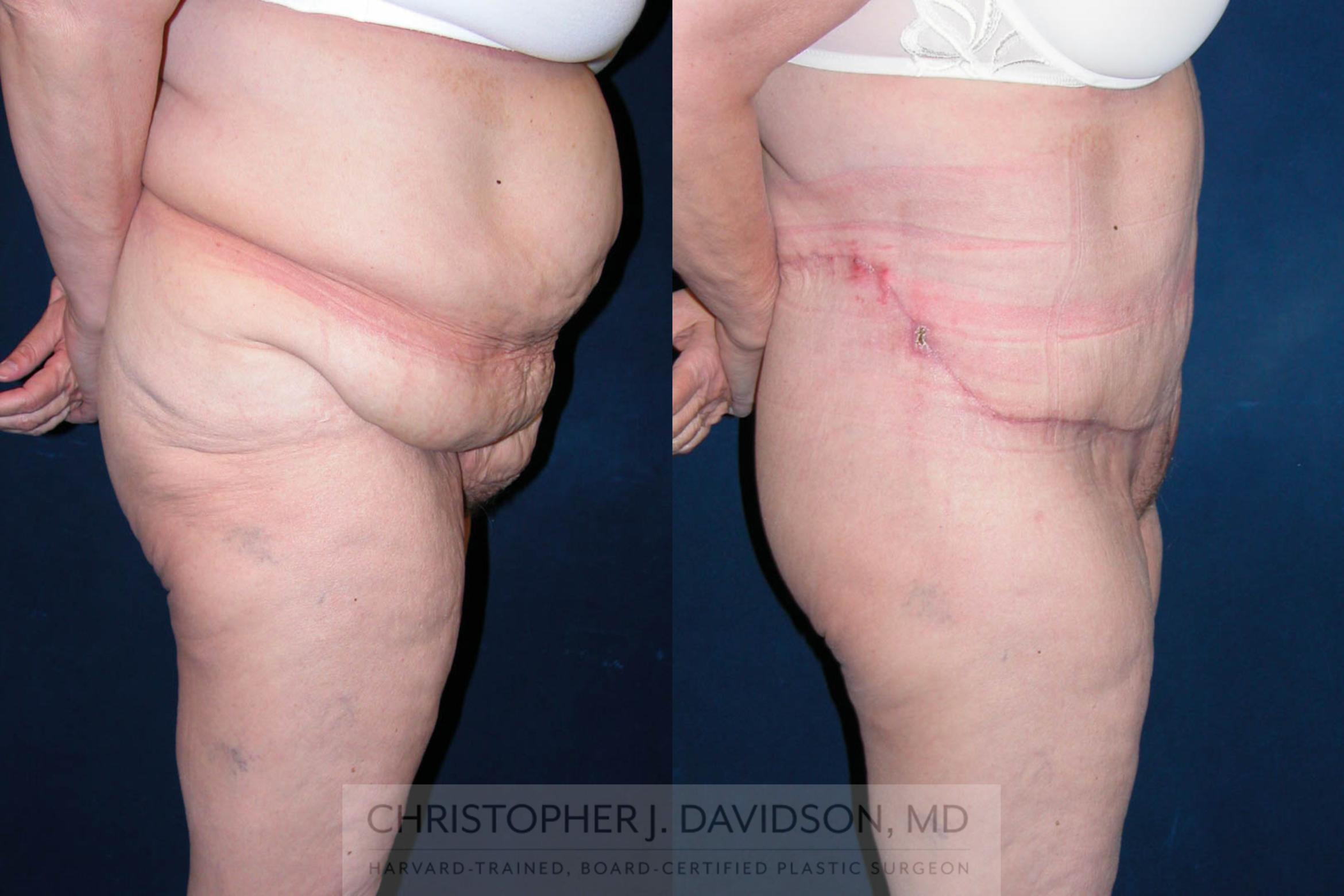 Lower Body Lift Case 120 Before & After View #4 | Boston, MA | Christopher J. Davidson, MD
