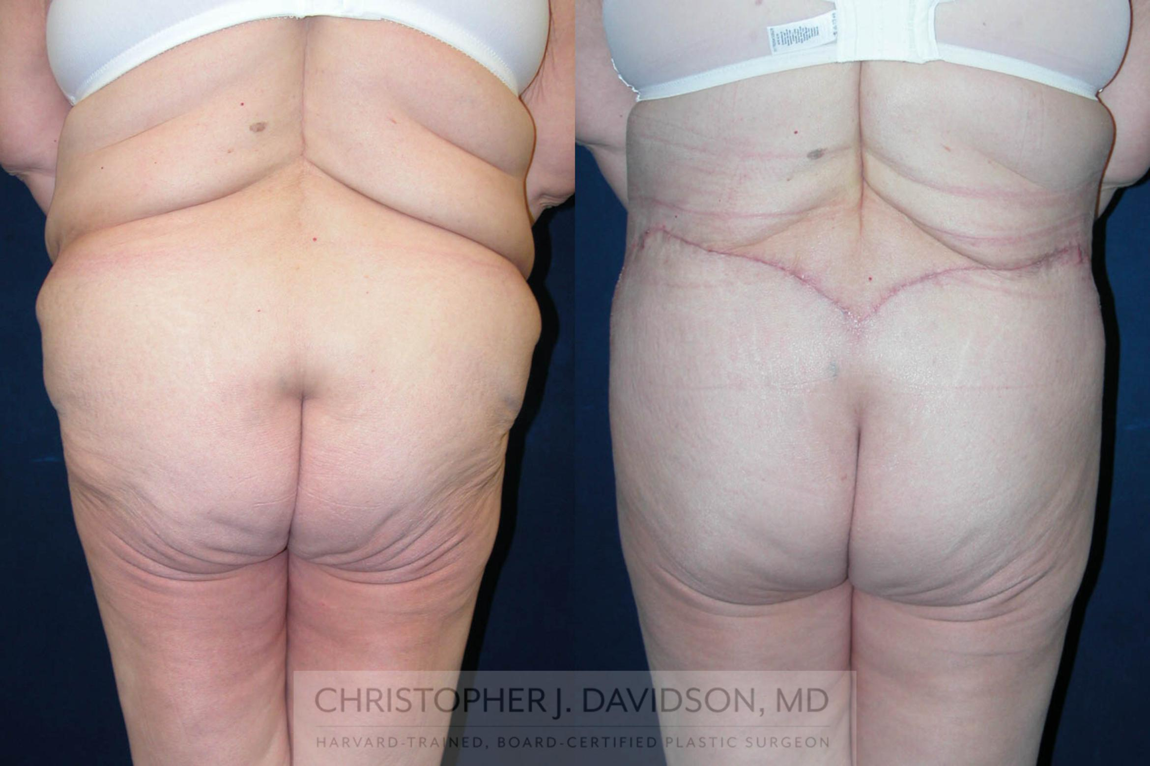 Lower Body Lift Case 120 Before & After View #5 | Boston, MA | Christopher J. Davidson, MD