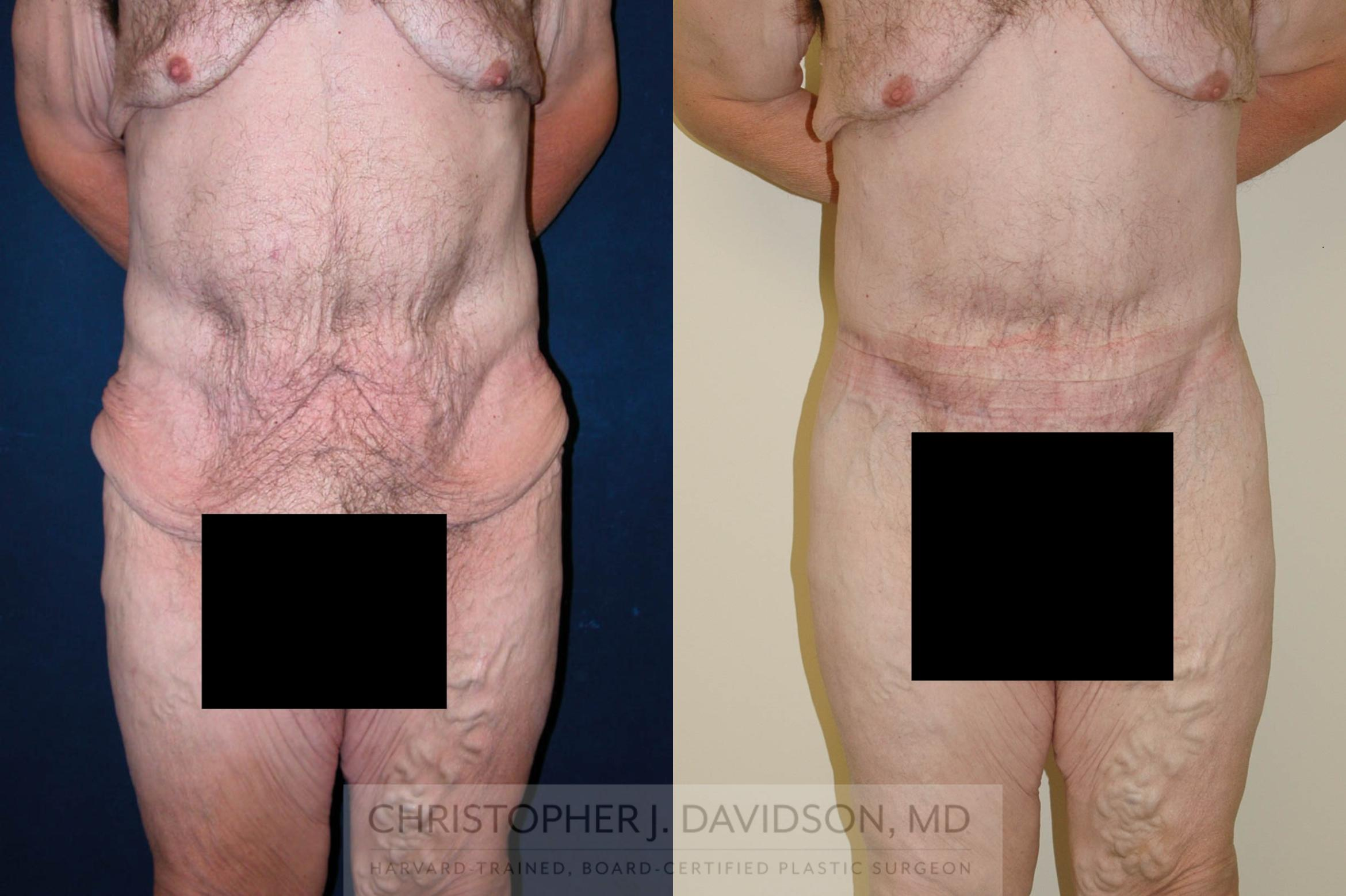 Lower Body Lift Case 124 Before & After View #1 | Wellesley, MA | Christopher J. Davidson, MD