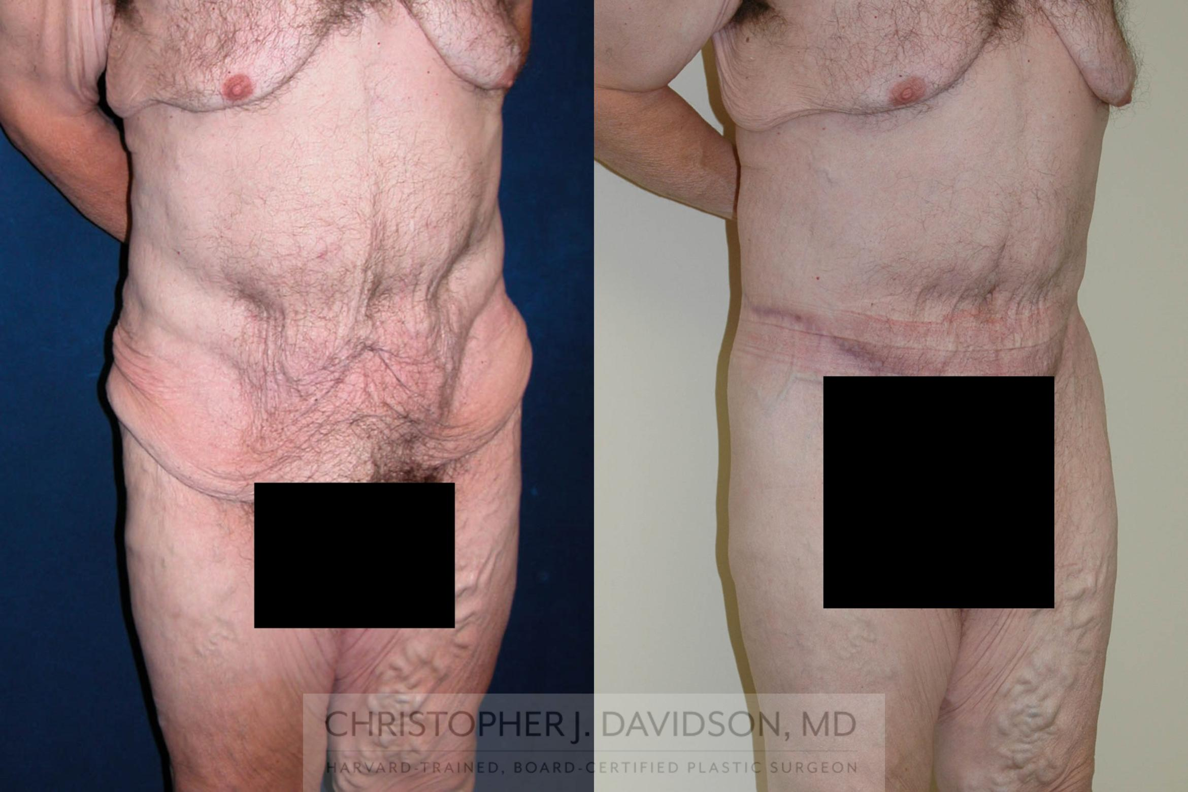 Lower Body Lift Case 124 Before & After View #2 | Boston, MA | Christopher J. Davidson, MD