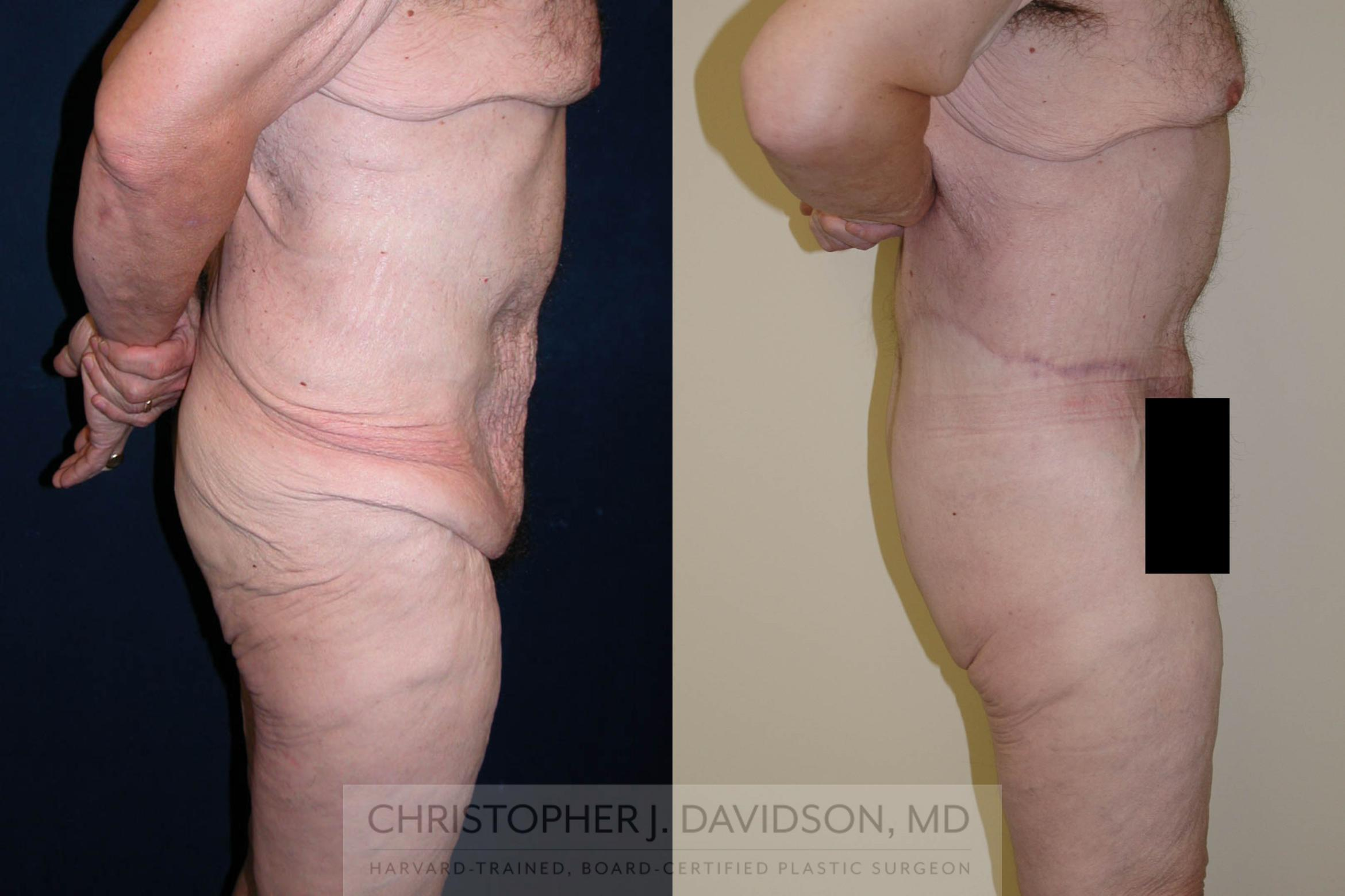 Lower Body Lift Case 124 Before & After View #4 | Boston, MA | Christopher J. Davidson, MD