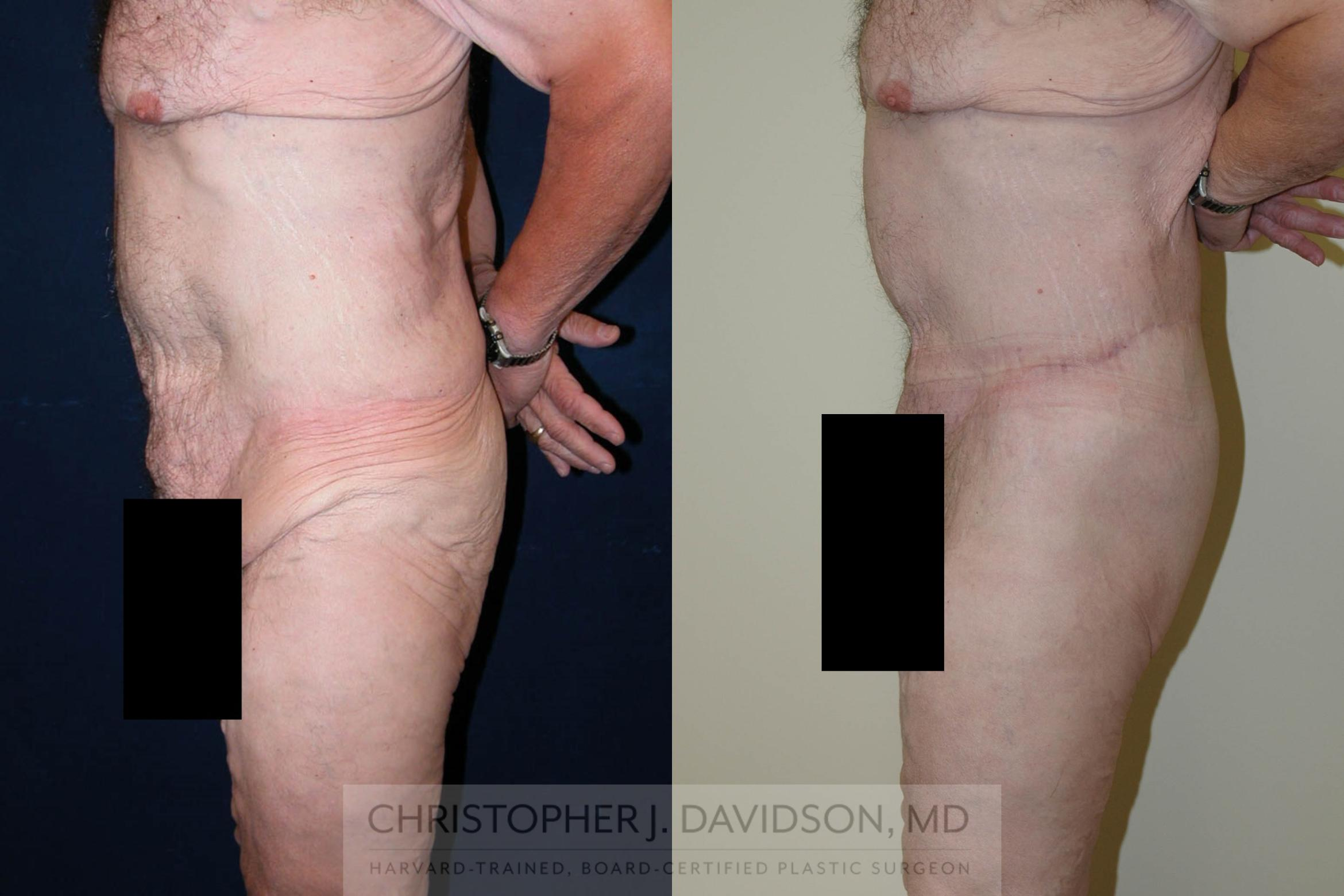 Lower Body Lift Case 124 Before & After View #5 | Boston, MA | Christopher J. Davidson, MD