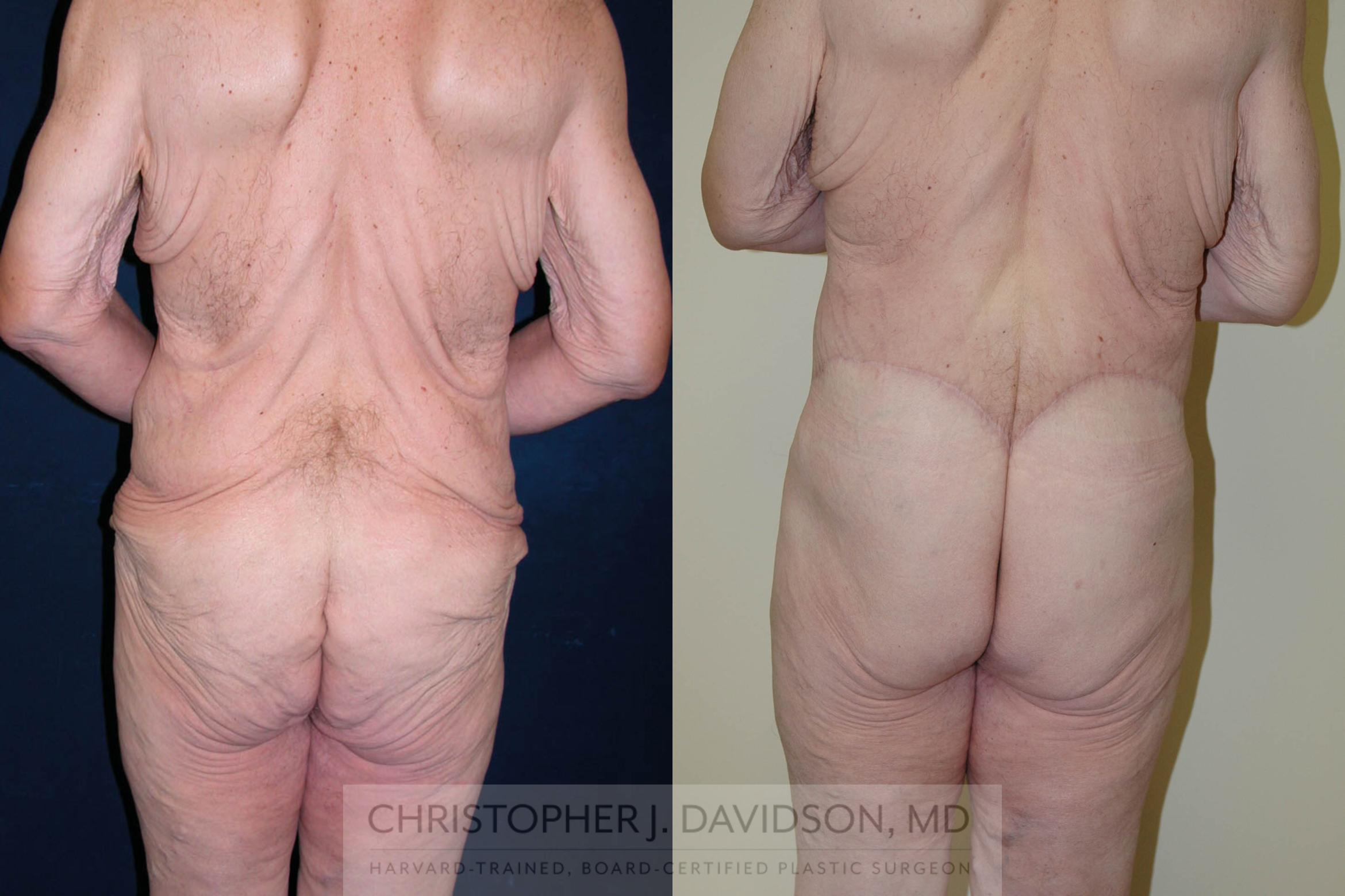 Lower Body Lift Case 124 Before & After View #6 | Boston, MA | Christopher J. Davidson, MD