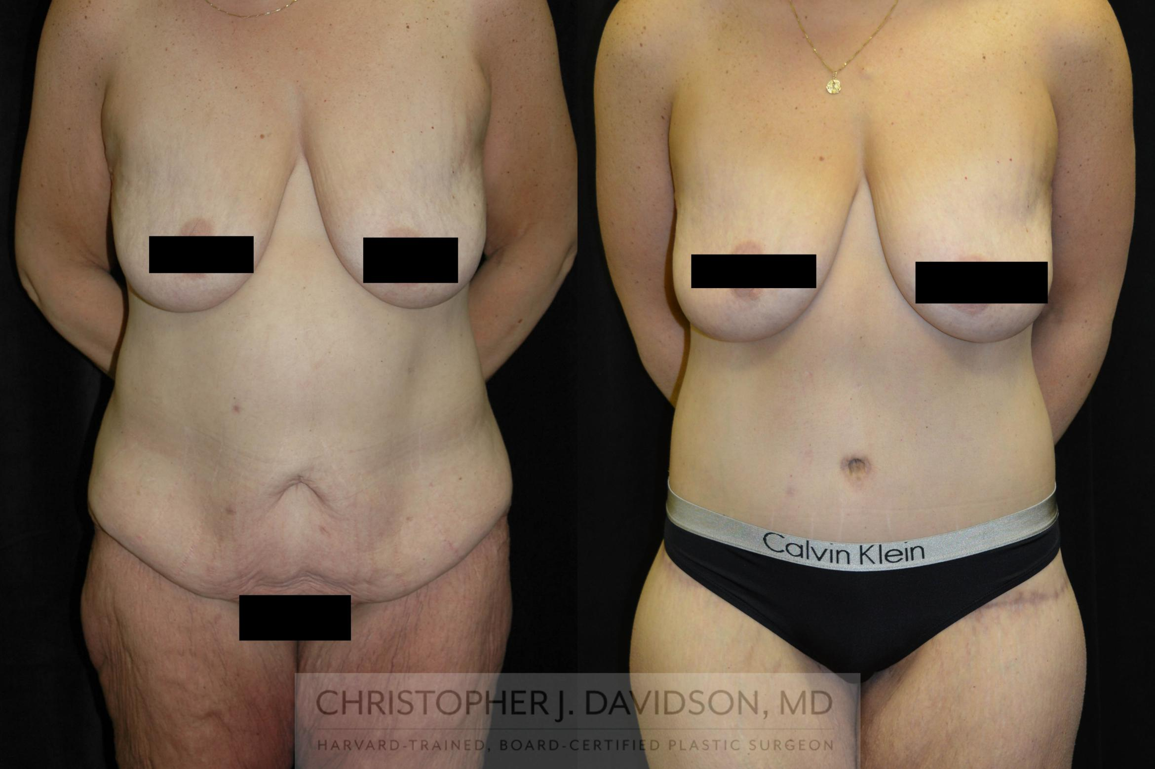 Lower Body Lift Case 134 Before & After View #1 | Boston, MA | Christopher J. Davidson, MD