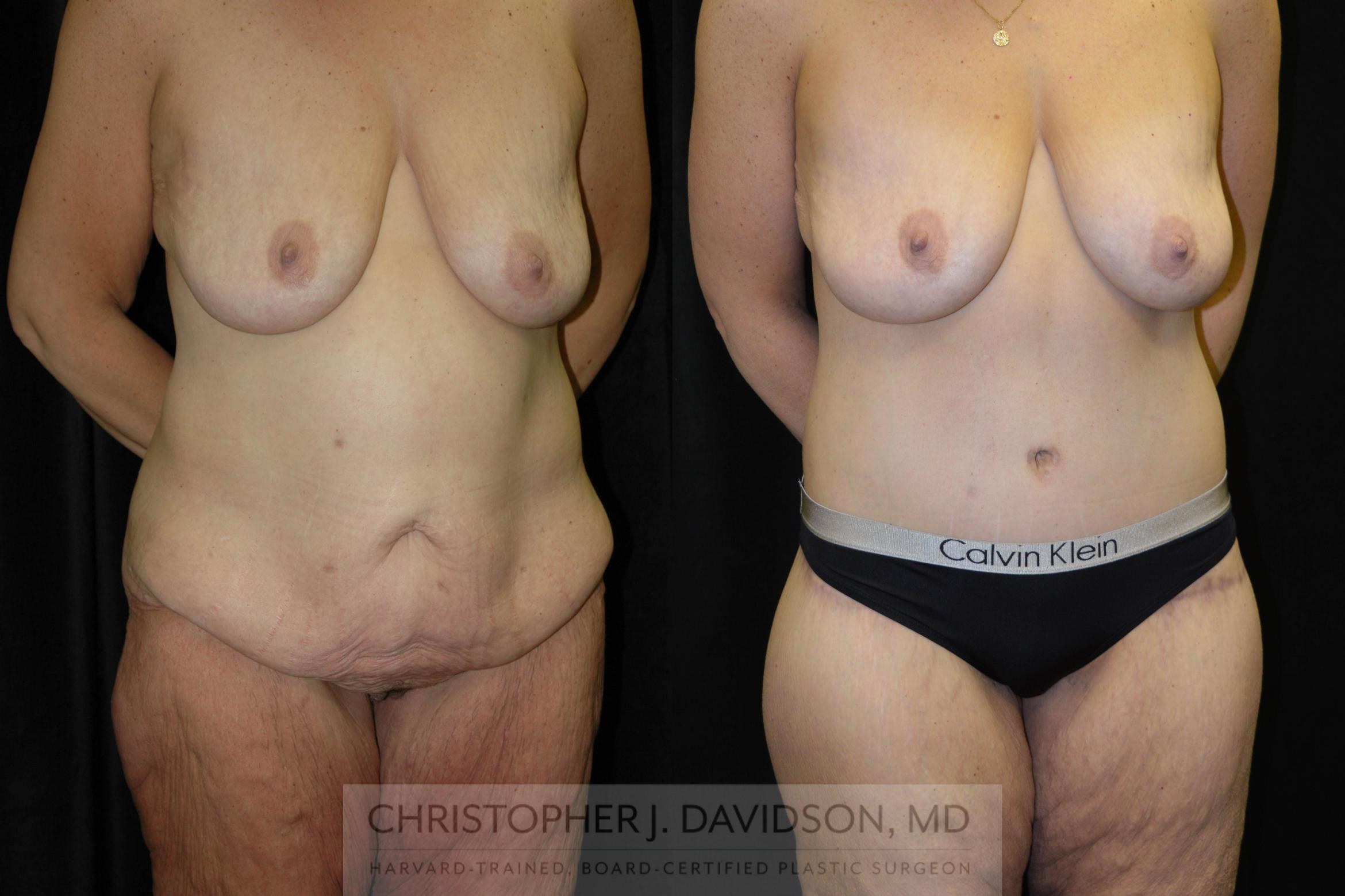 Lower Body Lift Case 134 Before & After View #2 | Boston, MA | Christopher J. Davidson, MD