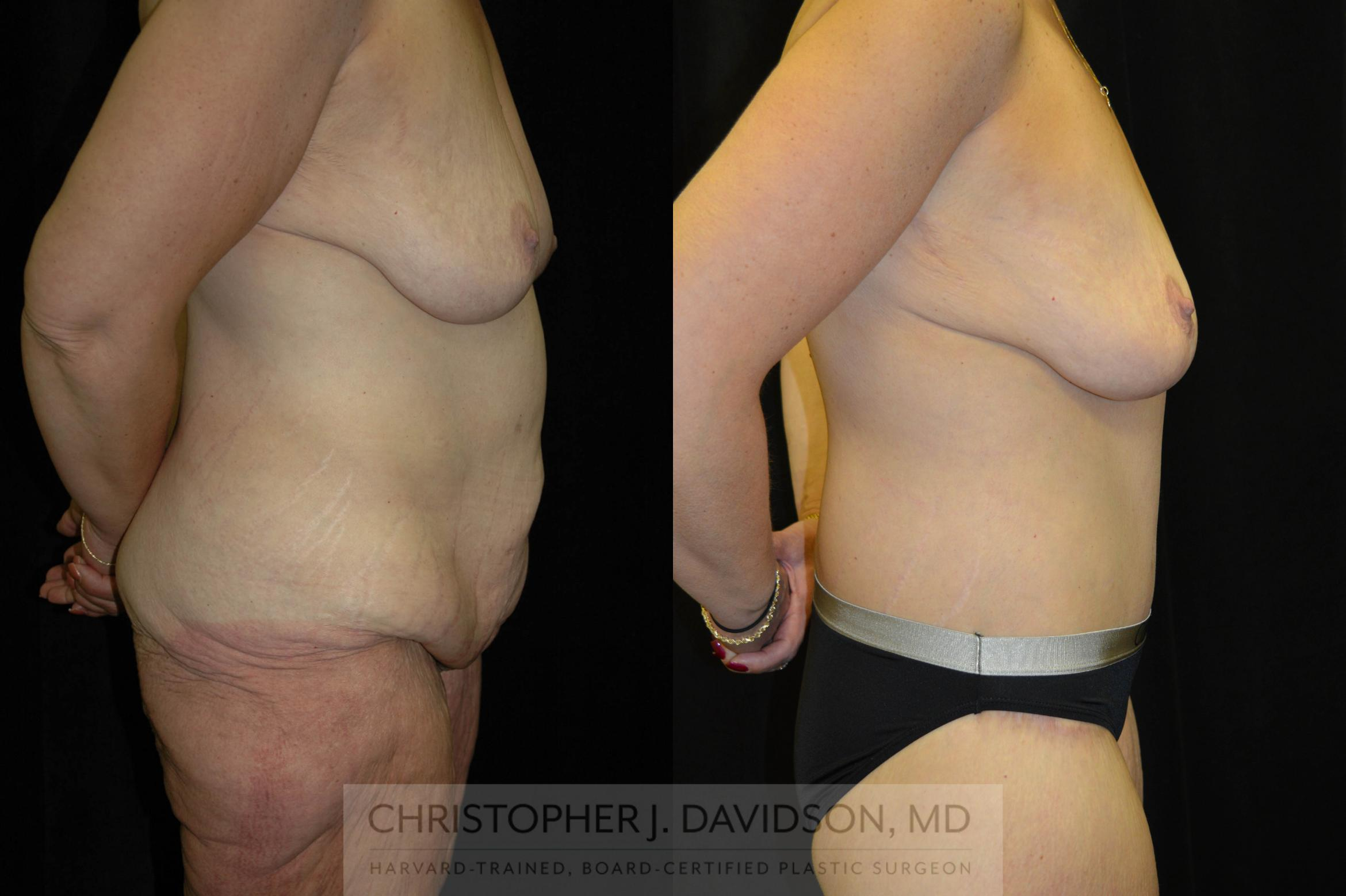 Lower Body Lift Case 134 Before & After View #3 | Boston, MA | Christopher J. Davidson, MD