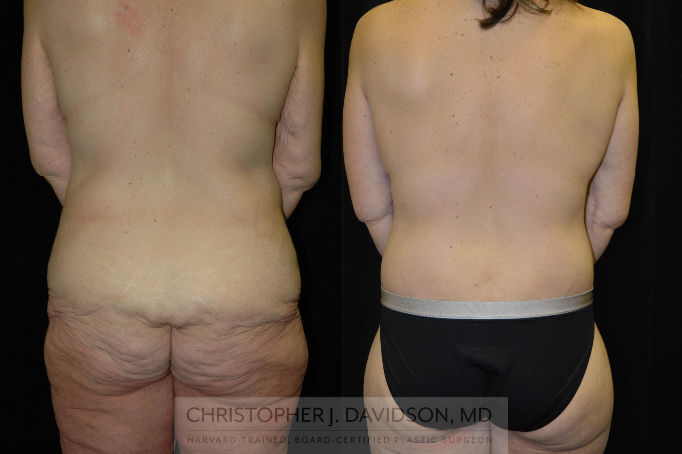 Lower Body Lift Case 134 Before & After View #4 | Boston, MA | Christopher J. Davidson, MD