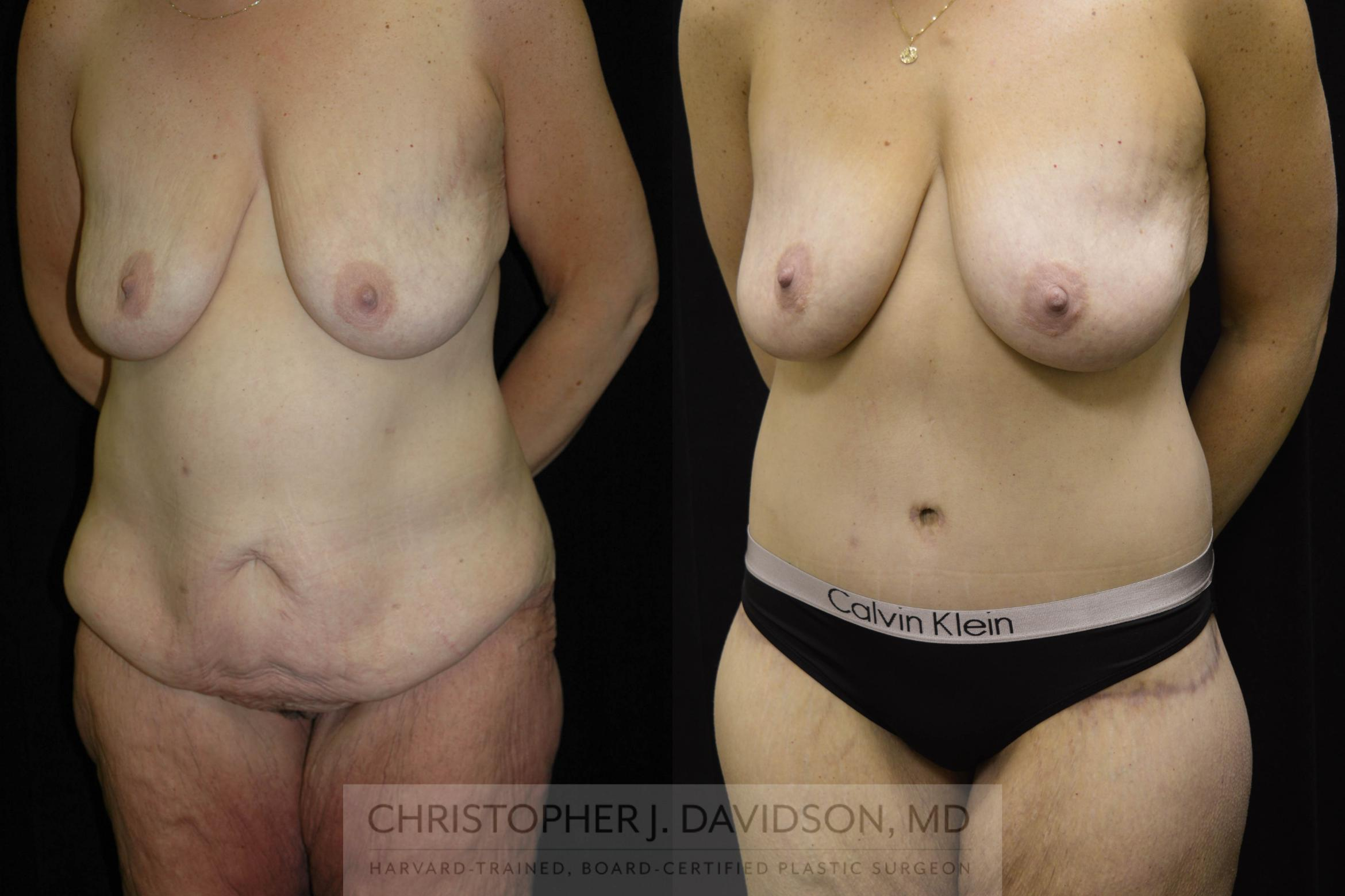 Lower Body Lift Case 134 Before & After View #6 | Boston, MA | Christopher J. Davidson, MD