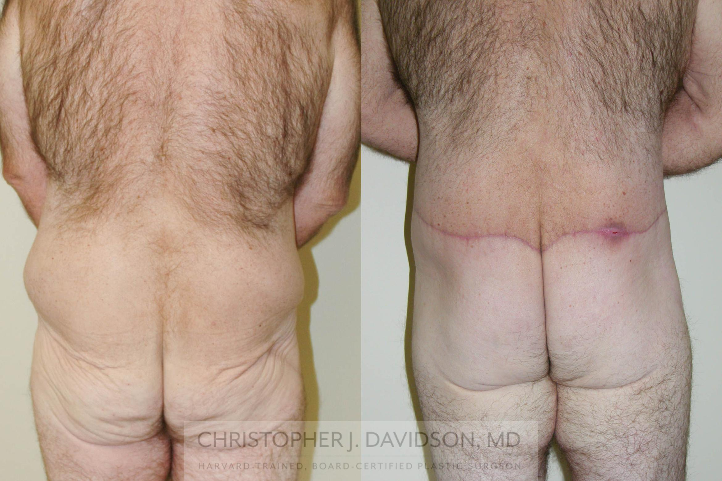 Lower Body Lift Case 156 Before & After View #3 | Boston, MA | Christopher J. Davidson, MD