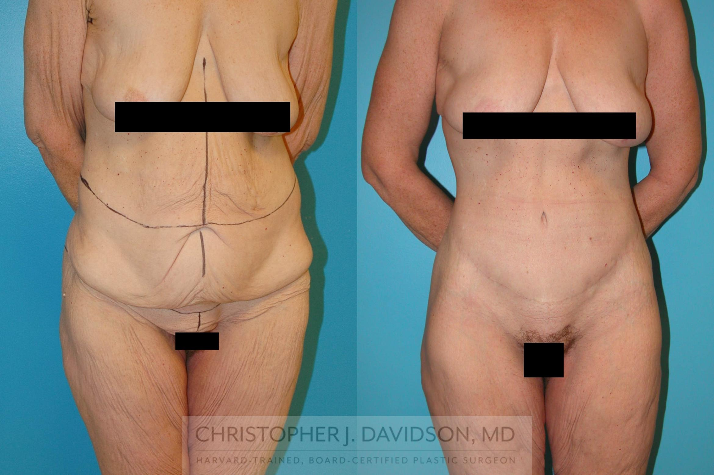 Lower Body Lift Case 204 Before & After View #1 | Boston, MA | Christopher J. Davidson, MD