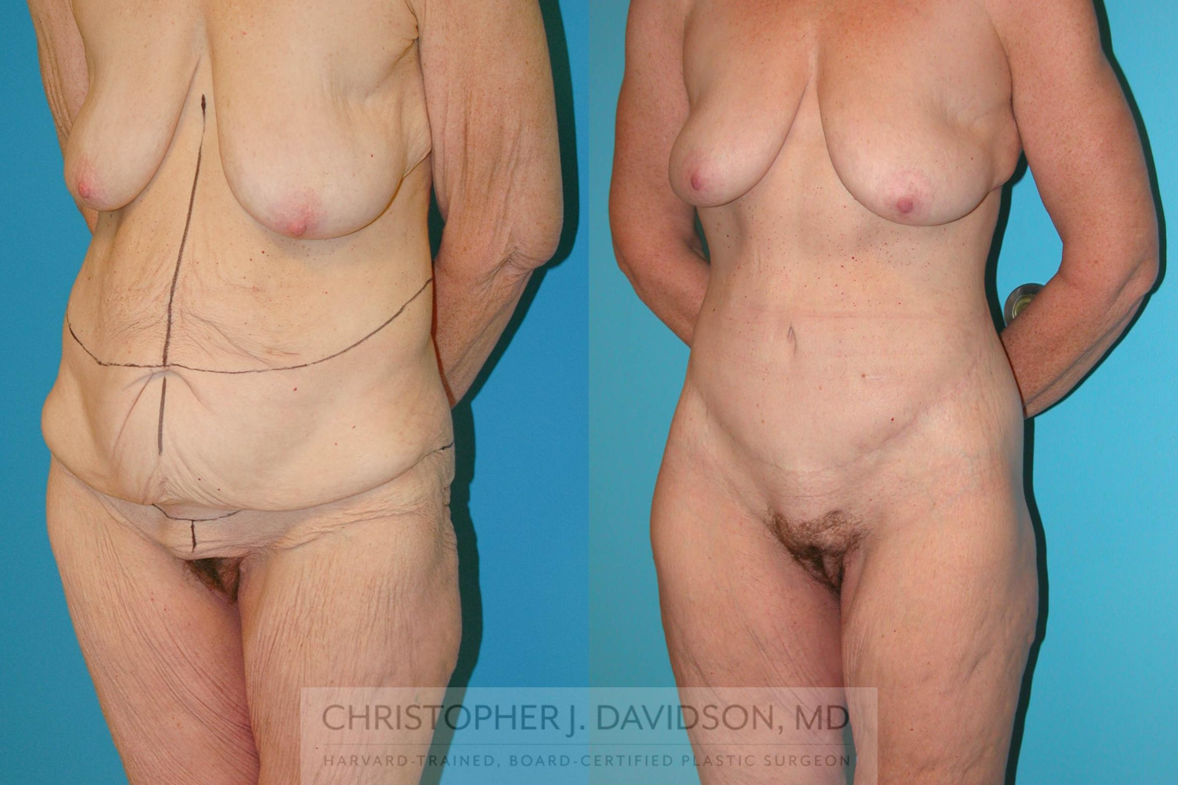 Lower Body Lift Case 204 Before & After View #2 | Boston, MA | Christopher J. Davidson, MD
