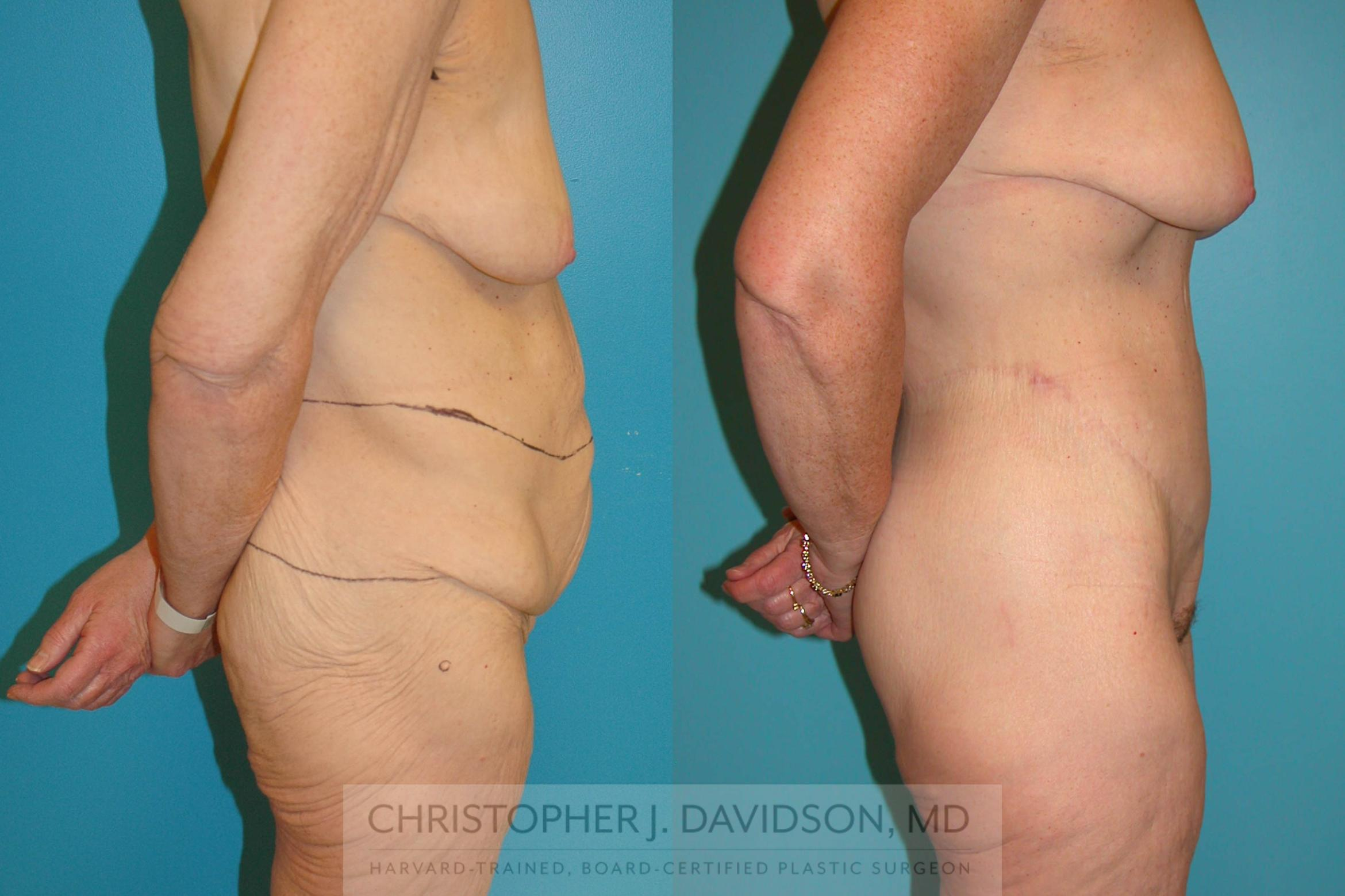 Lower Body Lift Case 204 Before & After View #3 | Boston, MA | Christopher J. Davidson, MD