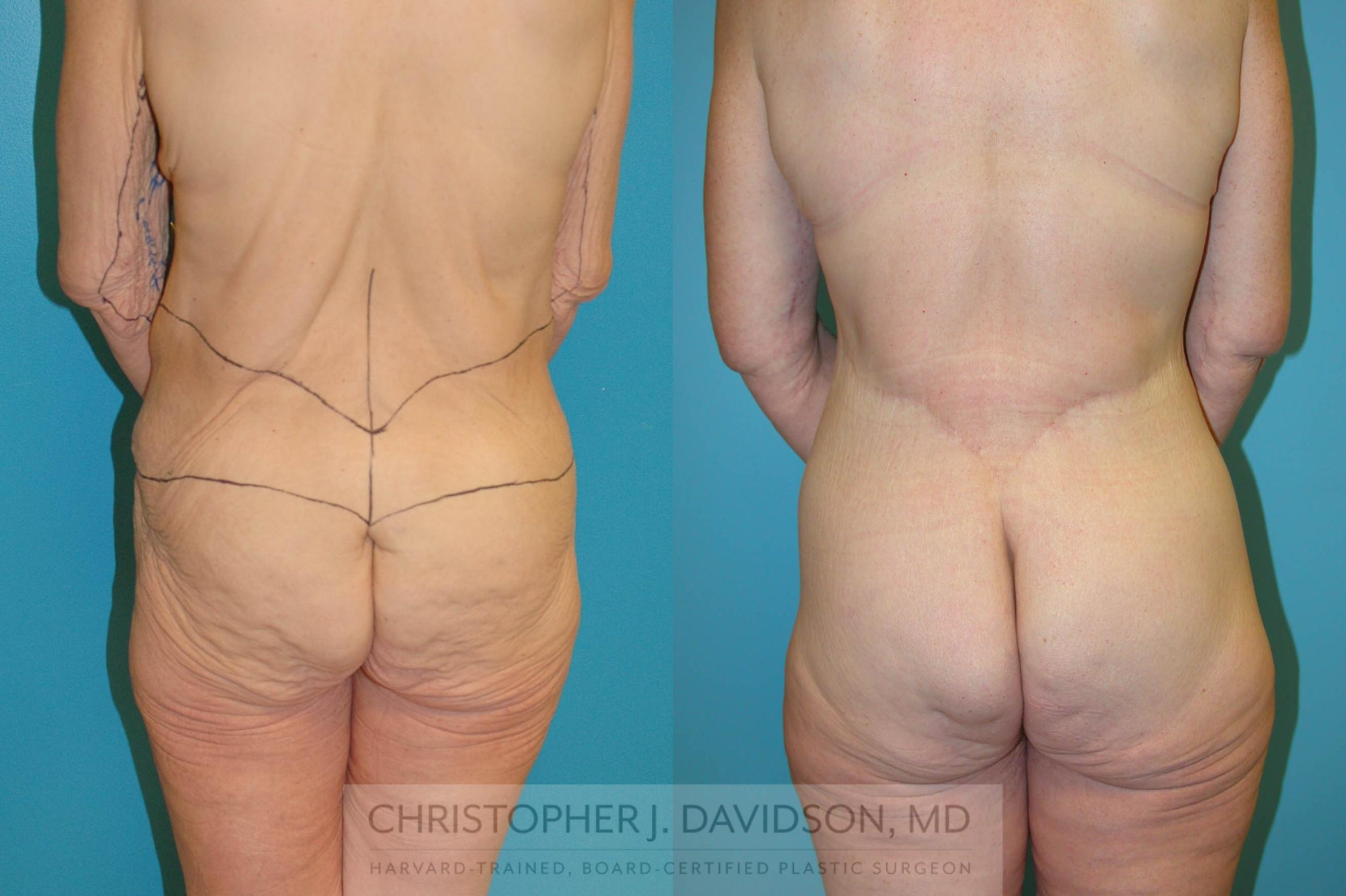 Lower Body Lift Case 204 Before & After View #4 | Boston, MA | Christopher J. Davidson, MD