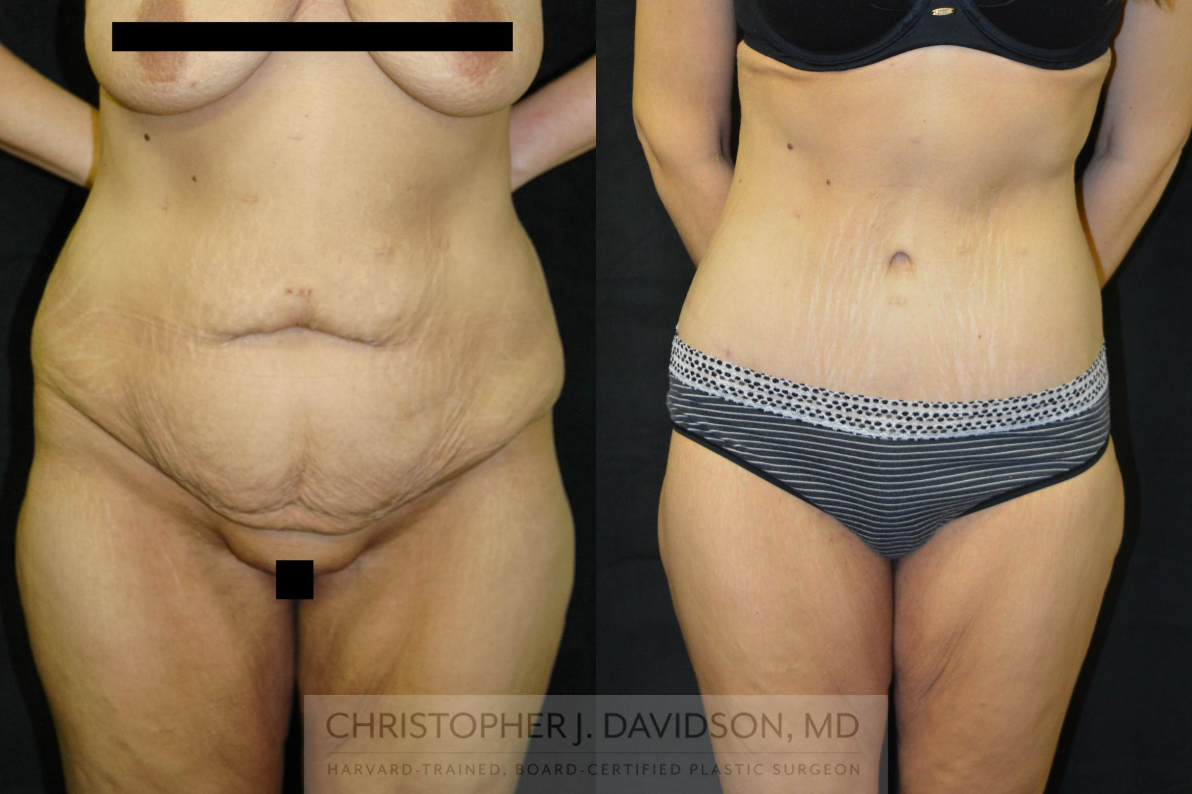 Lower Body Lift Case 24 Before & After View #1 | Boston, MA | Christopher J. Davidson, MD