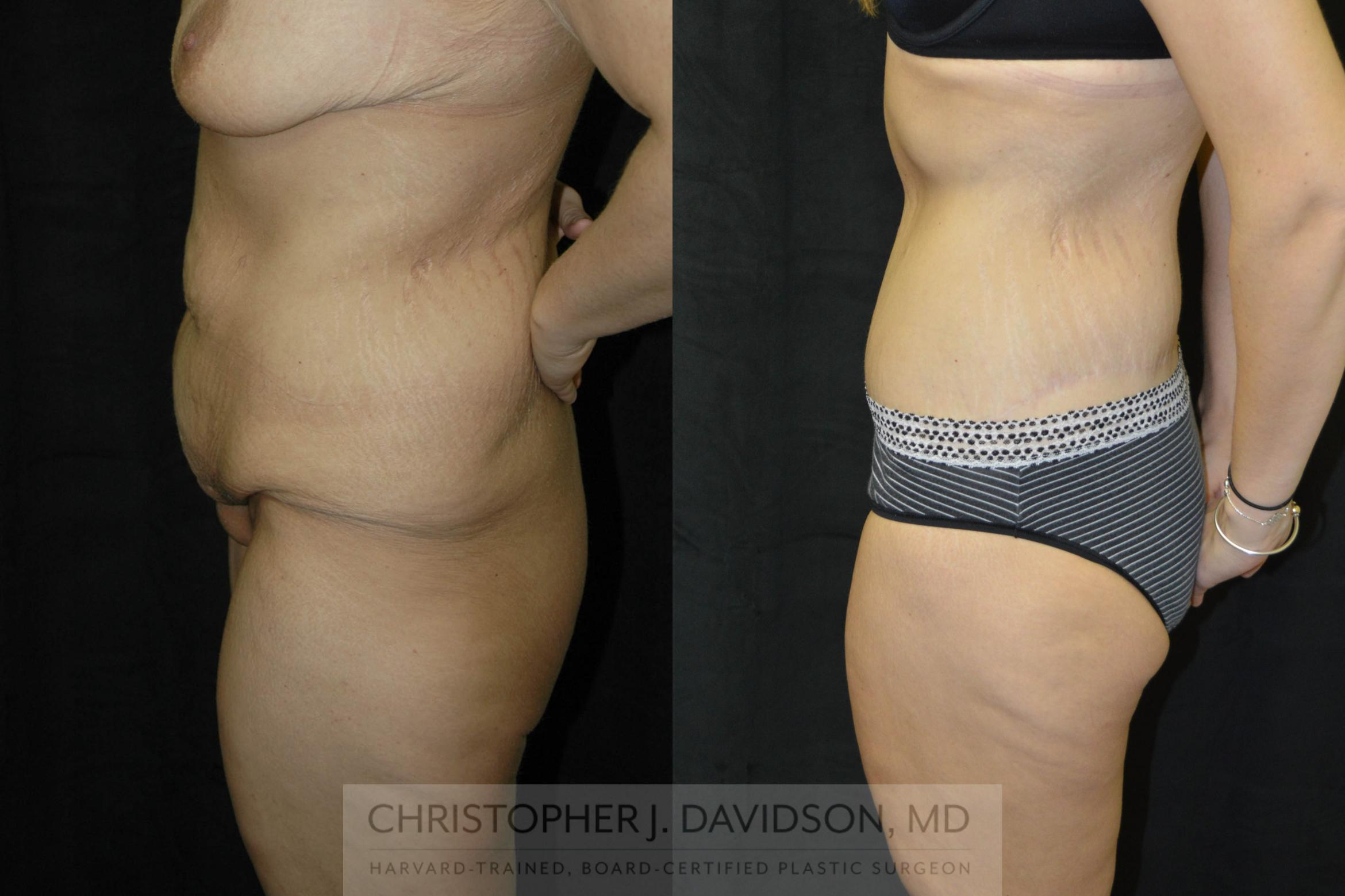 Lower Body Lift Case 24 Before & After View #3 | Boston, MA | Christopher J. Davidson, MD
