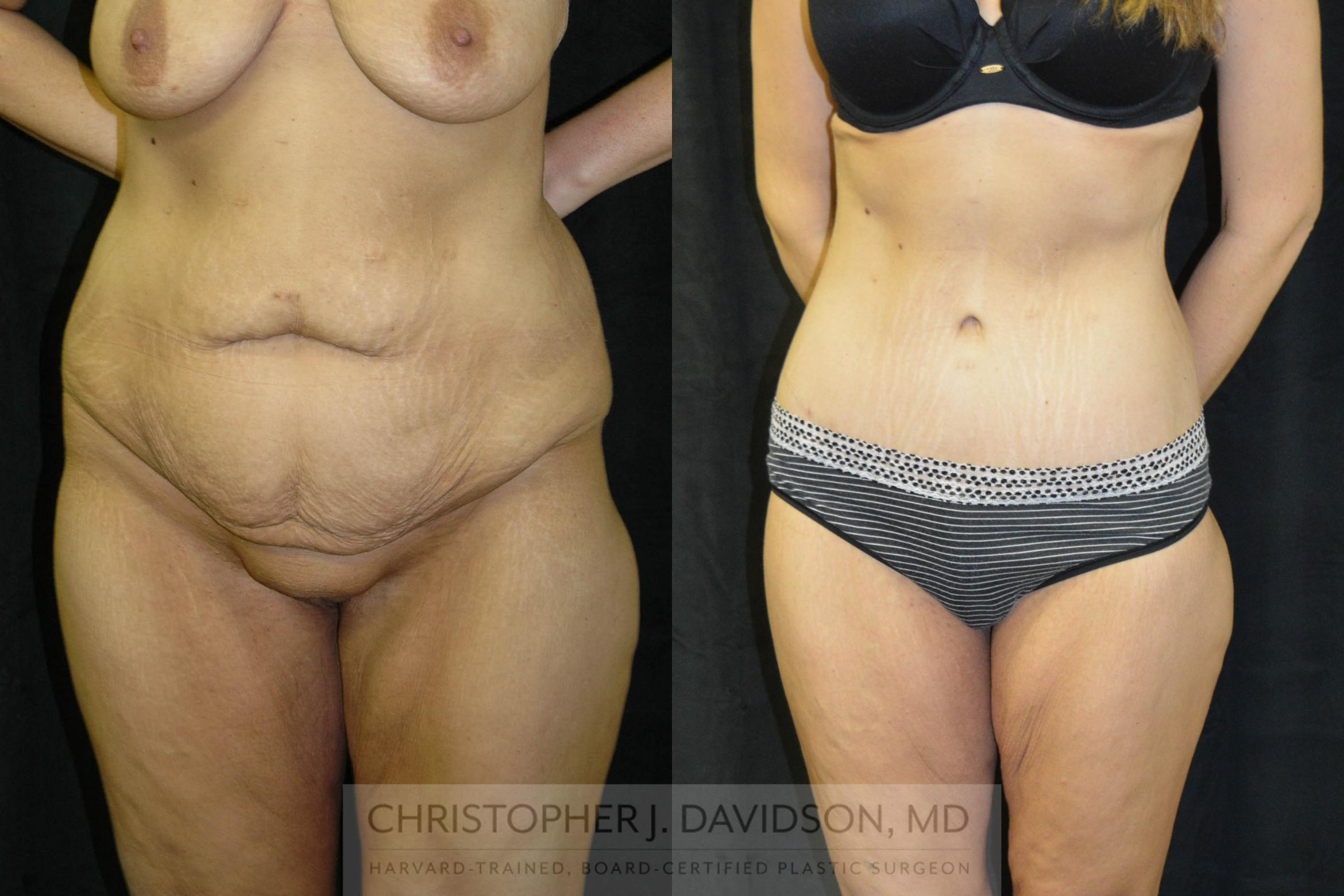 Lower Body Lift Case 24 Before & After View #4 | Boston, MA | Christopher J. Davidson, MD
