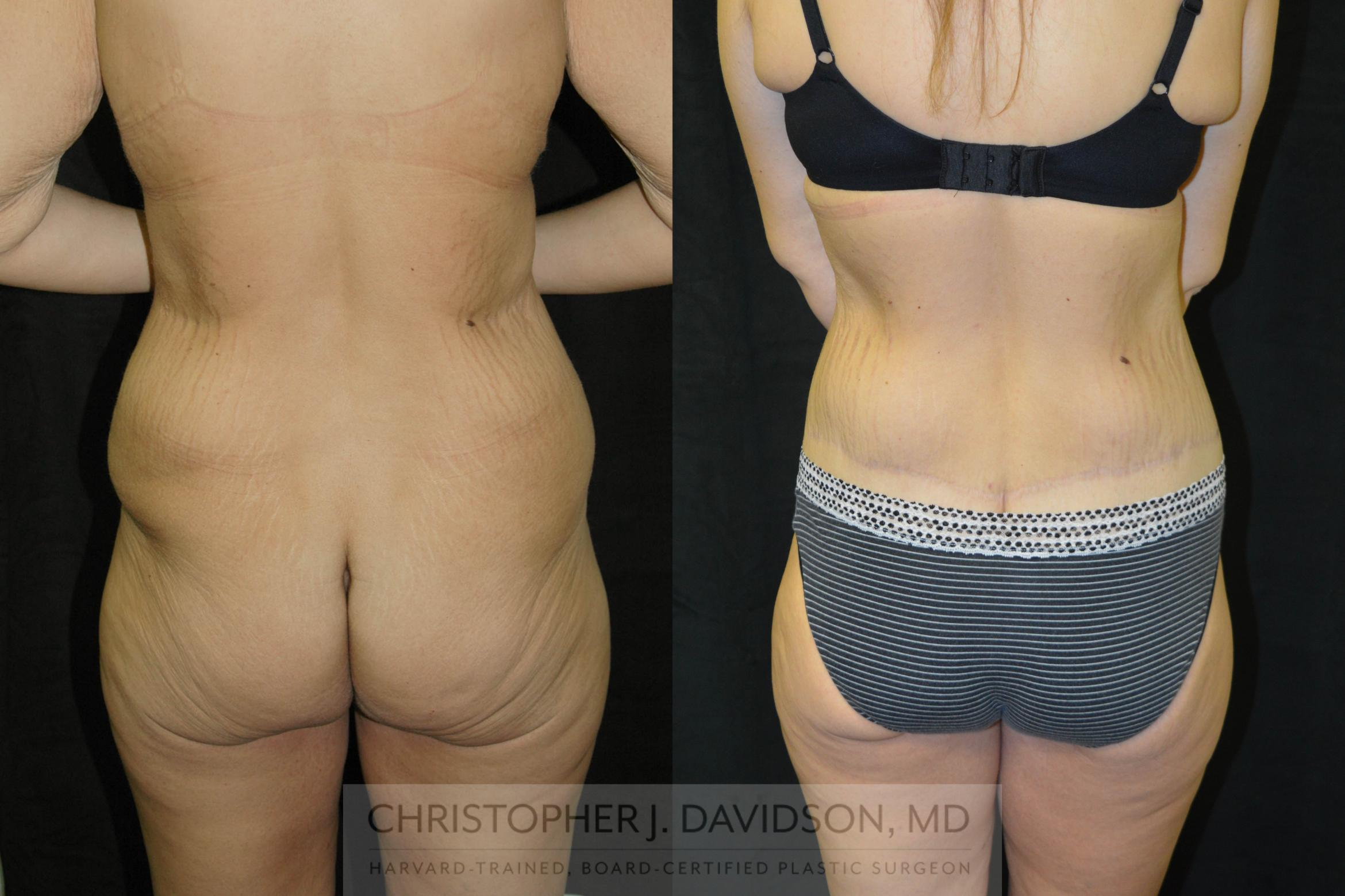 Lower Body Lift Case 24 Before & After View #5 | Boston, MA | Christopher J. Davidson, MD