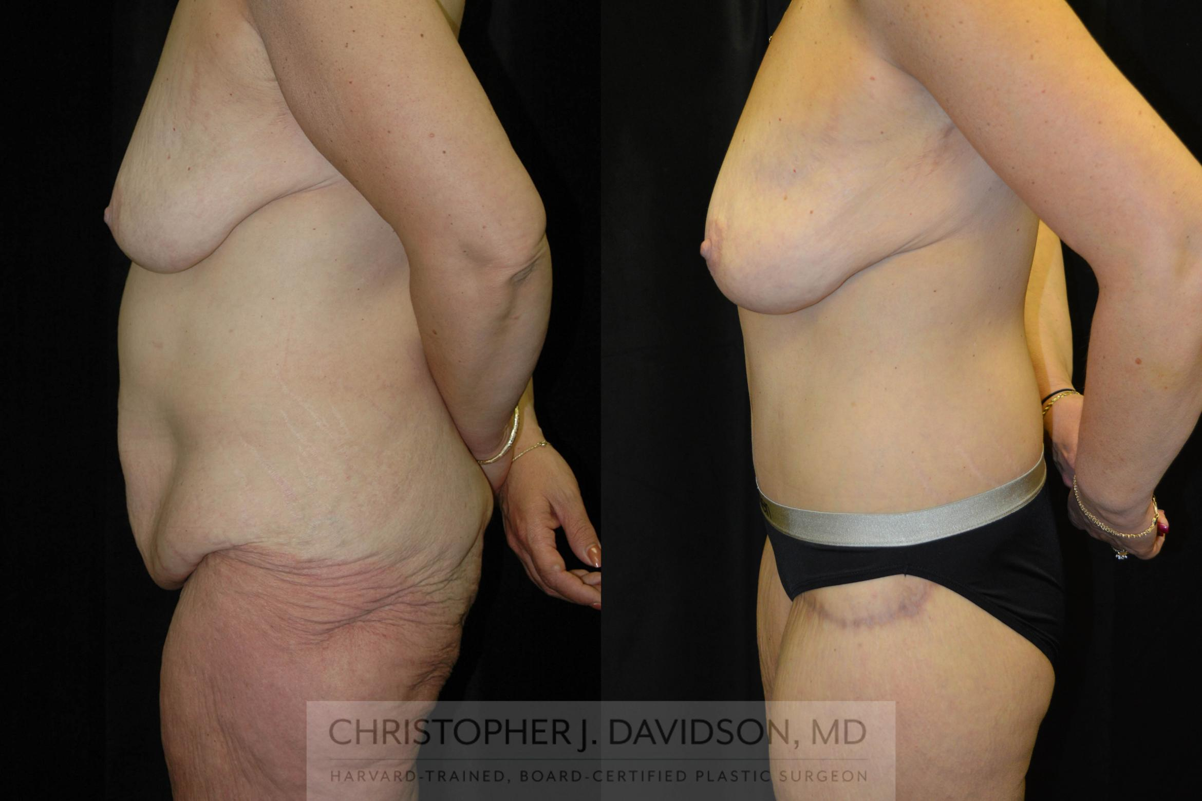 Lower Body Lift Case 72 Before & After View #2 | Boston, MA | Christopher J. Davidson, MD