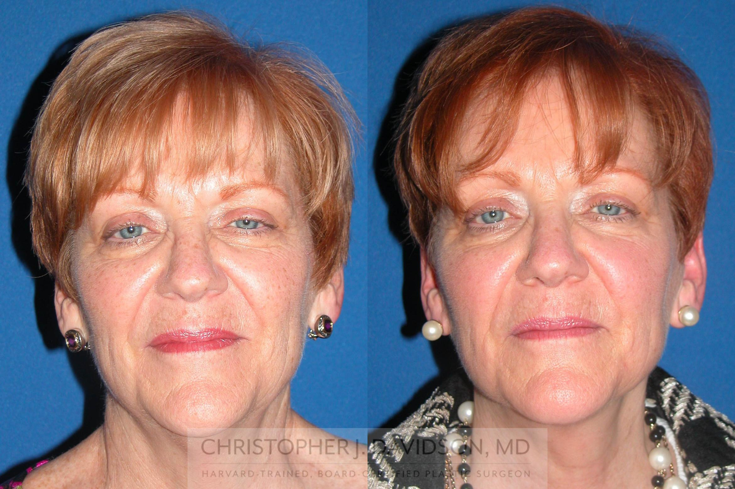 Neck Lift Case 76 Before & After View #1 | Wellesley, MA | Christopher J. Davidson, MD