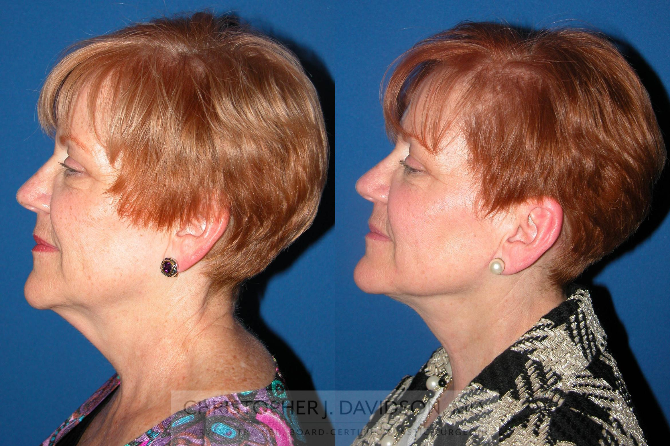 Neck Lift Case 76 Before & After View #2 | Boston, MA | Christopher J. Davidson, MD