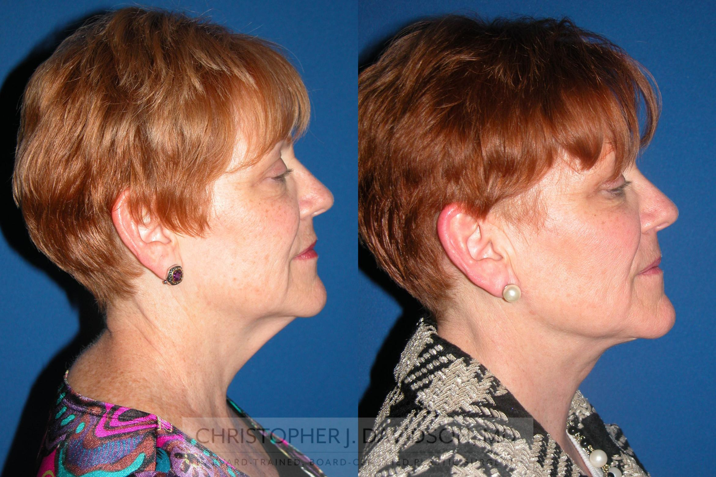 Neck Lift Case 76 Before & After View #3 | Boston, MA | Christopher J. Davidson, MD