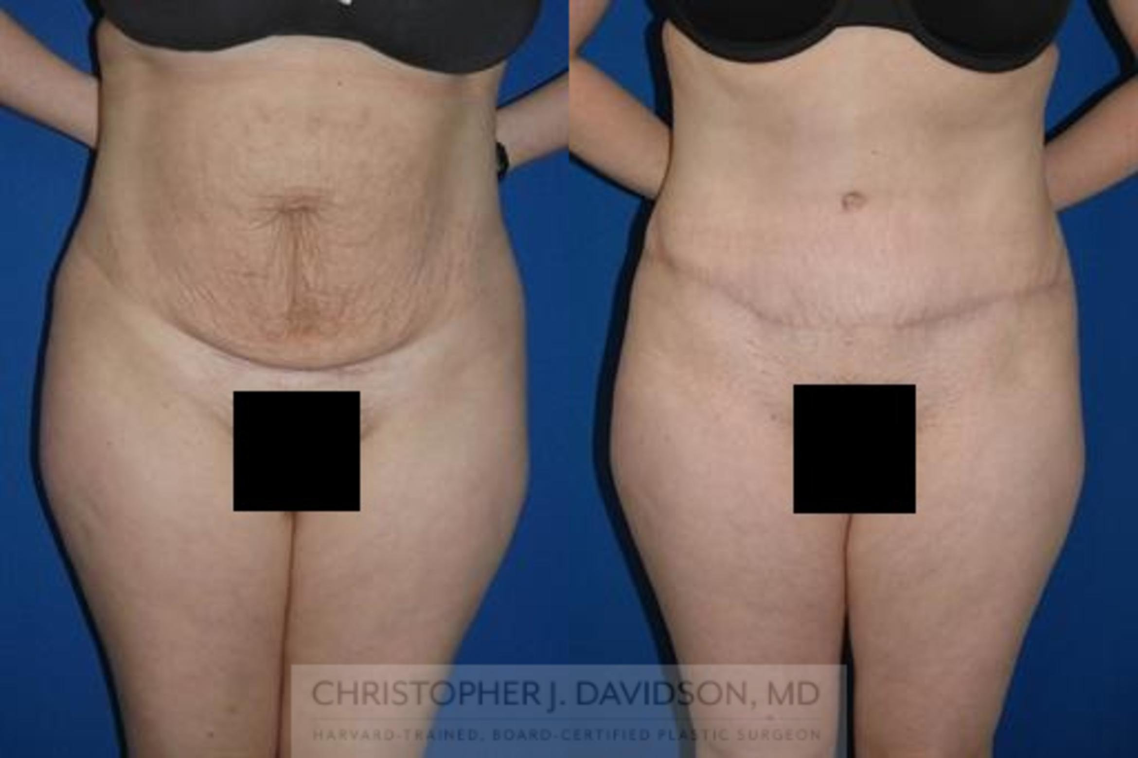 Tummy Tuck (Abdominoplasty) Case 11 Before & After View #1 | Boston, MA | Christopher J. Davidson, MD