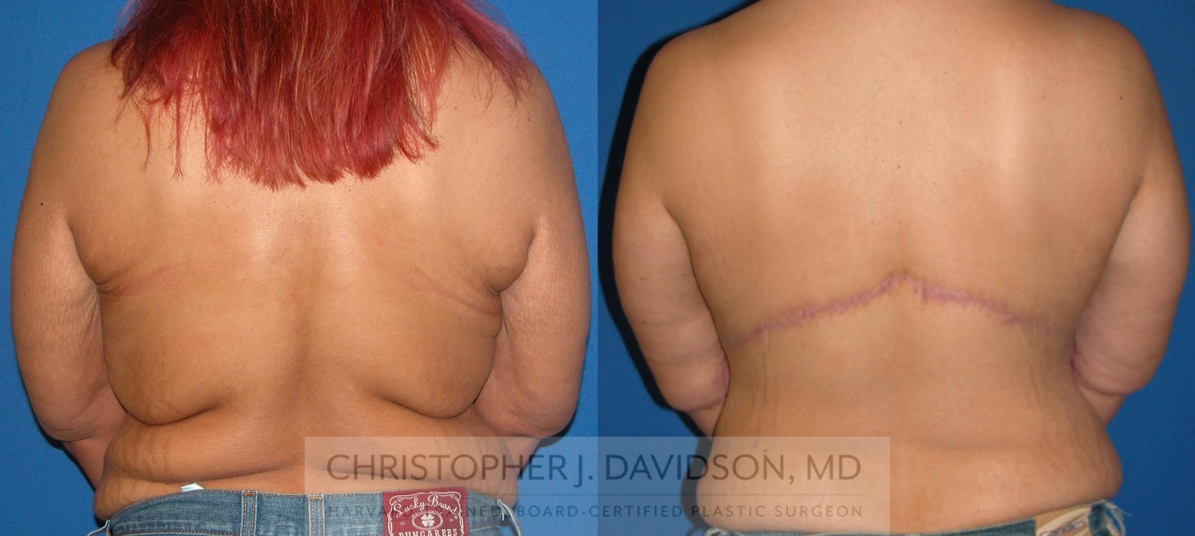Upper Body Lift Case 105 Before & After View #1 | Boston, MA | Christopher J. Davidson, MD